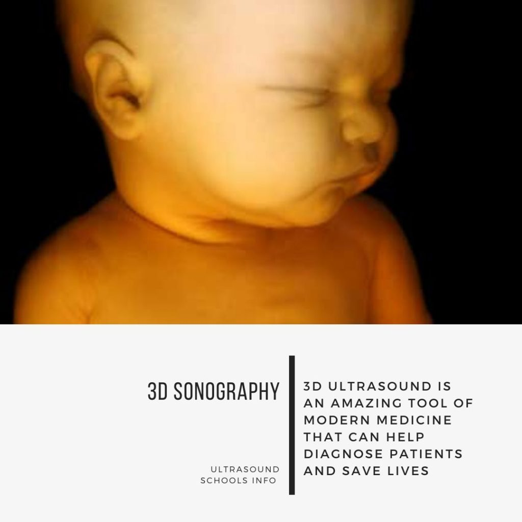 3D Sonography